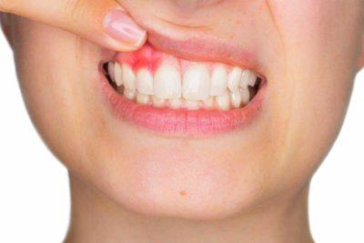 paradontologia e gengive infiammate. Dentista a Villa Guardia