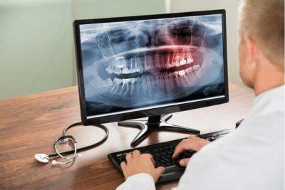 Radiologia Digitale ai denti. Dentista a Como
