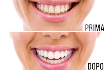 Sbiancamento denti a Como - Dentista a Como